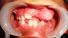 Цементо-оссифицирующая фиброма