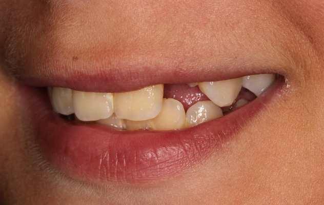 Травма 22 зуба и восстановление спустя 8 месяцев