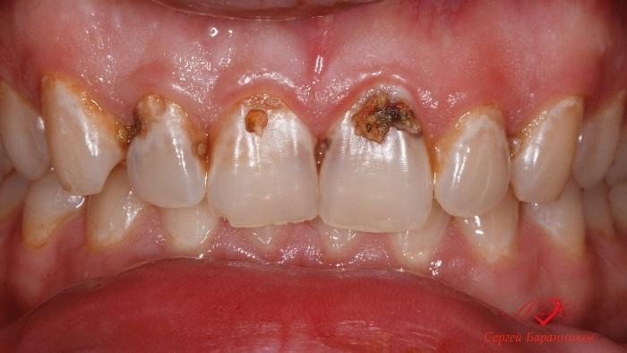 Восстановление эстетики фронтальной группы зубов в одно посещение