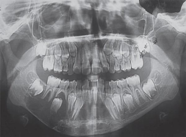 Аневризмальная киста нижней челюсти