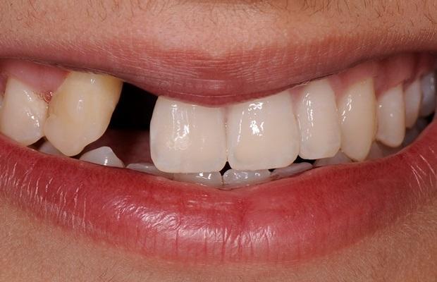 Трехмерная реконструкция комплексного ятрогенного дефекта посредством комбинации ортодонтического и аугментационного подходов