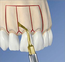 Ускорение ортодонтического лечения воздействием на пародонт