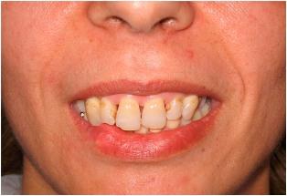 Эстетическое восстановление аномально расположенной зубной дуги ...