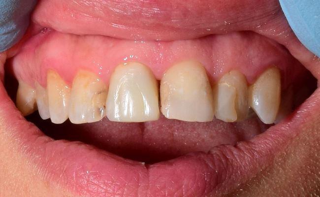 Прямая реставрация резцов верхней челюсти