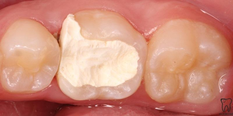 Объемная реставрация зуба 3.6 после эндодонтического лечения