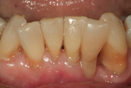 Возможности армирования зубов в реставрационной стоматологии