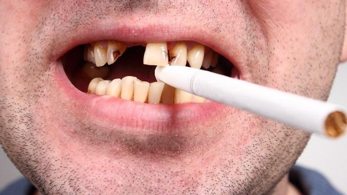 Курение способствует развитию пародонтита