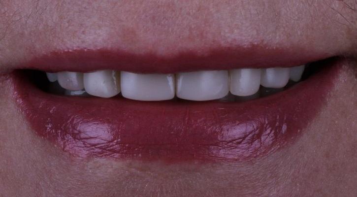 Прямая композитная реставрация зубов 1.3 - 2.3