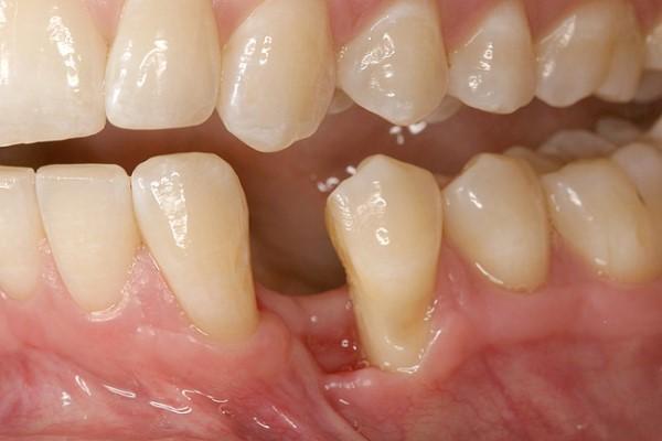 Восстановление зубо-альвеолярных дефектов: мультидисциплинарный подход