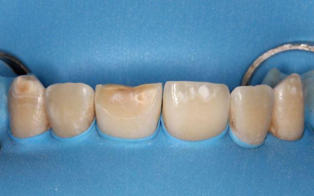 Эстетическая реабилитация фронтальной группы зубов