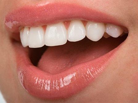 Минимальная коррекция со значительным эффектом: эстетика в стоматологии