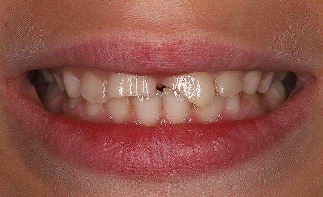 Травма зубов 1.1 и 2.1