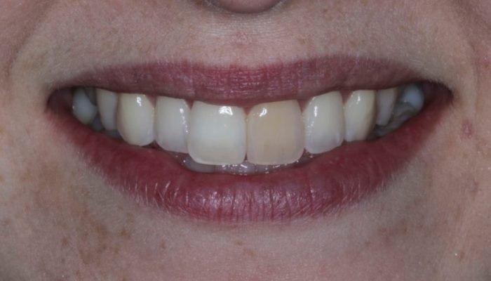 Минимально инвазивное лечение одиночного дисколорированного зуба