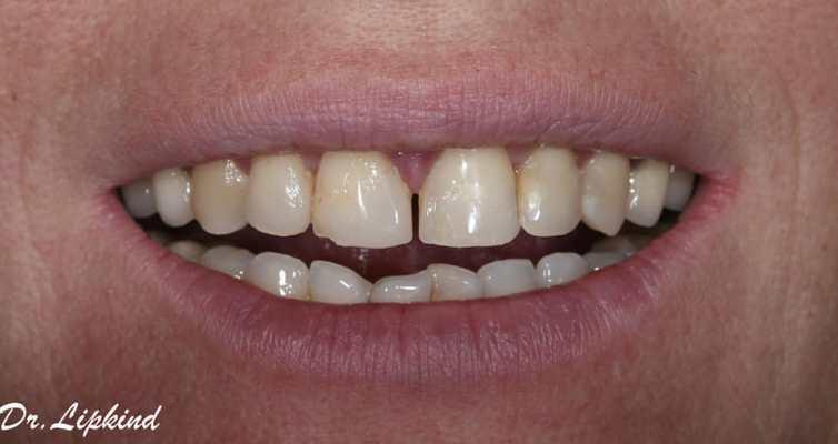 Применение готовых (стандартных) композитных виниров в реставрации фронтальных зубов