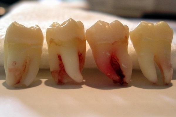 Аутотрансплантация зуба мудрости как альтернатива зубной имплантации