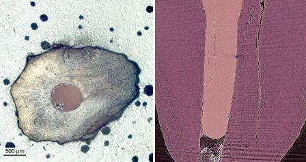 Появление микротрещин в процессе лечения корневого канала не связано с действиями стоматолога