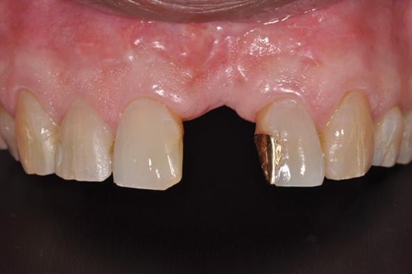 Имплантаты узкого диаметра: основа для аугментации костного гребня и направляющие для установки окончательных опор