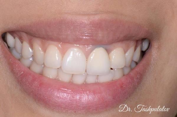Немедленная имплантация в область 21 зуба