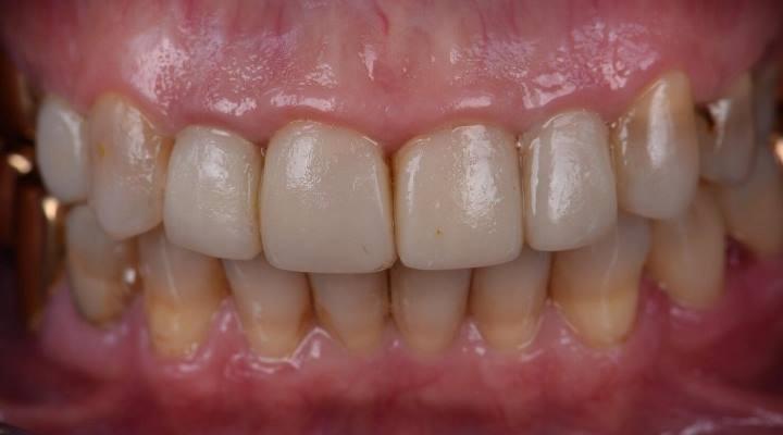 Реставрация фронтального отдела зубов за один прием