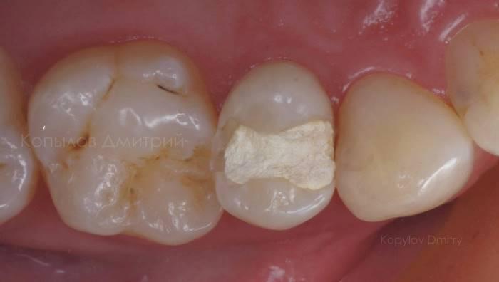 Реставрация бокового зуба