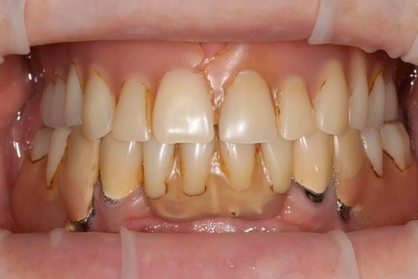 Вариант бюджетной реабилитации пациентки с полной и частичной вторичной адентией на верхней и нижней челюсти