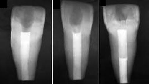 Образцы зубов, запломбированные различными материалами.