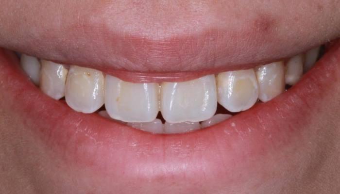 Восстановление зубов после ортодонтического лечения