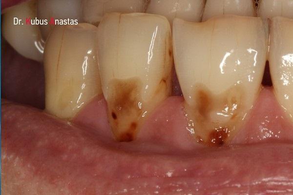 Эстетическая реставрация пришеечных дефектов зубов