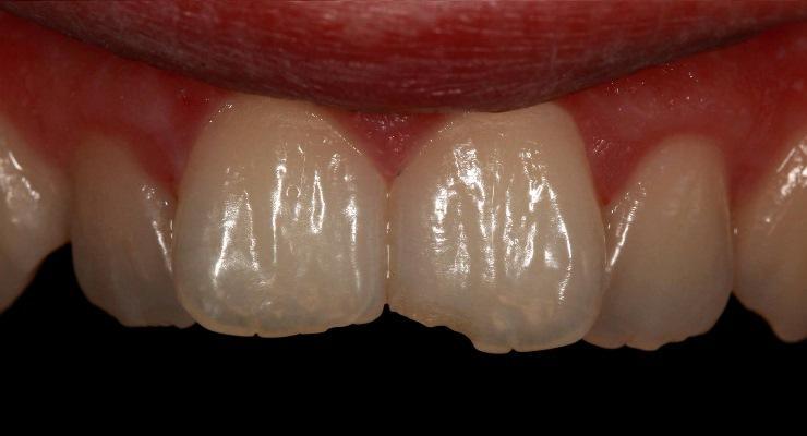 Реставрация скола 21 зуба