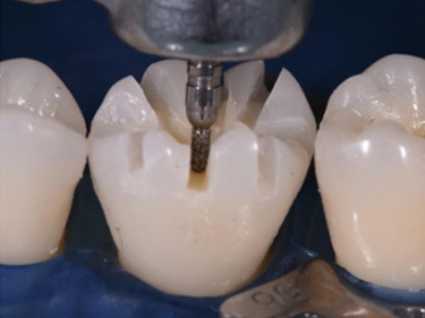 V-образное препарирование окклюзионной поверхности под минимально инвазивные цельнокерамические реставрации