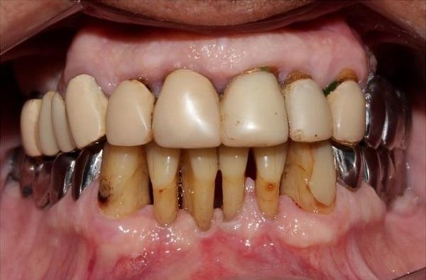 Реабилитация пациента с частичным отсутствием зубов, используя бюгельные протезы с телескопической системой фиксации
