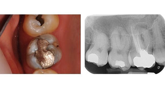 Повторное эндодонтическое лечение первого моляра верхней челюсти