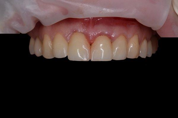 Замена металлокерамических реставраций на имплантаты в области центральных резцов верхней челюсти