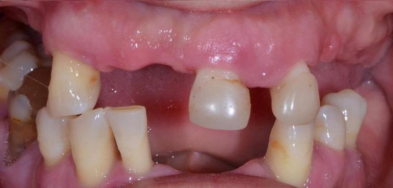 Реставрация зубных рядов несъемными конструкциями с винтовой фиксацией с опорой на имплантаты (All-on-4)