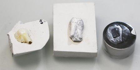 Разработали методику производства композитного материала для создания зубных протезов, повторяющих свойства естественных зубов