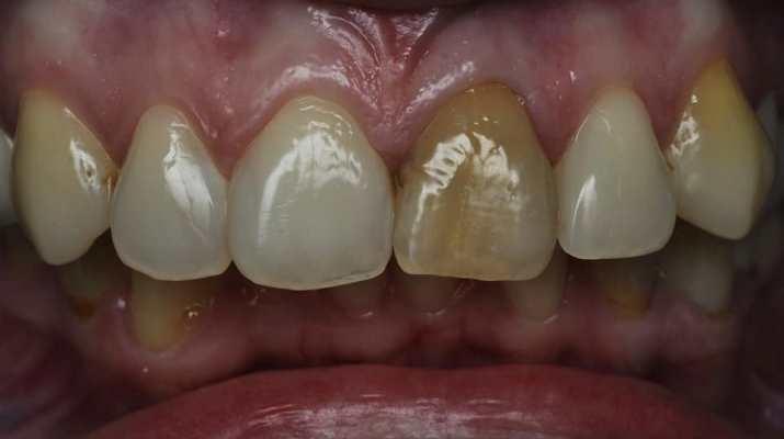 Прямая композитная реставрация зуба 21