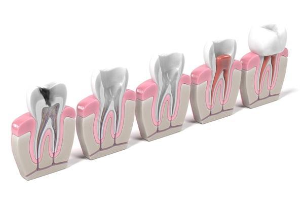 Реставрации эндодонтически пролеченных зубов с точки зрения биоинженерии