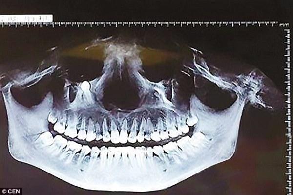 У китаянки обнаружили зуб, растущий под глазницей