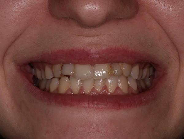 Антиортодонтия или а как бы поступили вы?