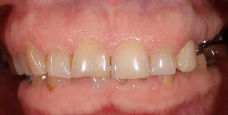 Комбинированная тотальная реабилитация на зубах и имплантатах с изменением vdo