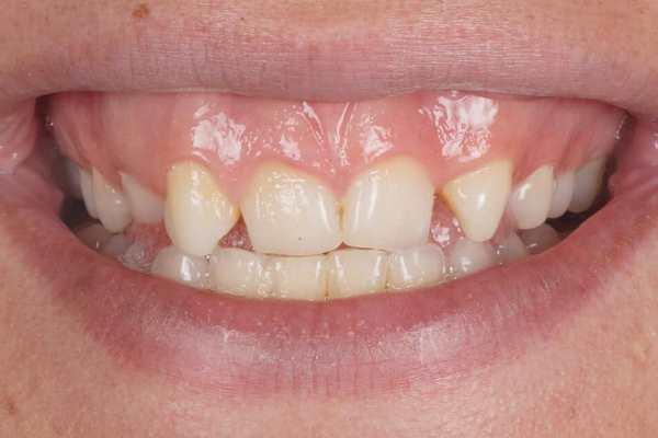 Новые зубы и улыбка с помощью композита за 5 часов