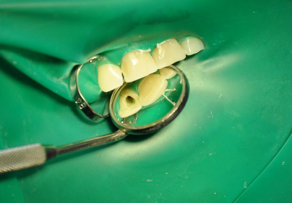 сделать виниры на зубы цена