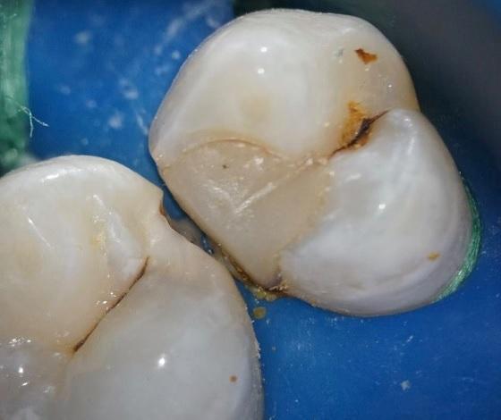 Лечение кариеса зубов D2.4;2.5 прямым методом с применением современных композитных материалов
