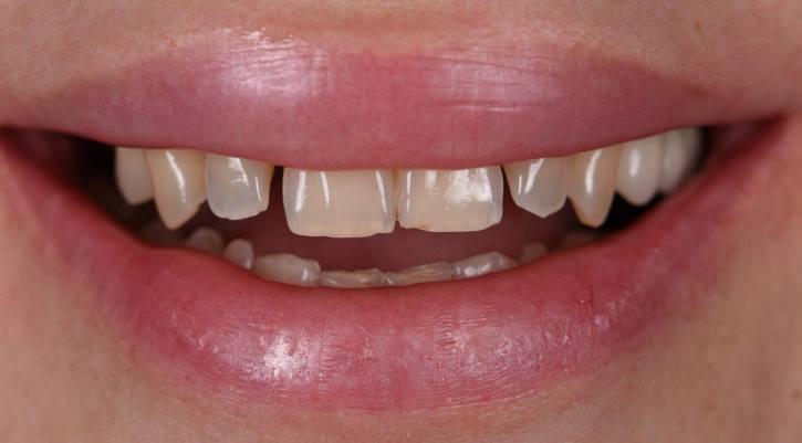 Мокап (mock-up) в реставрационной стоматологии: дань моде или необходимость, которая даст лучший результат
