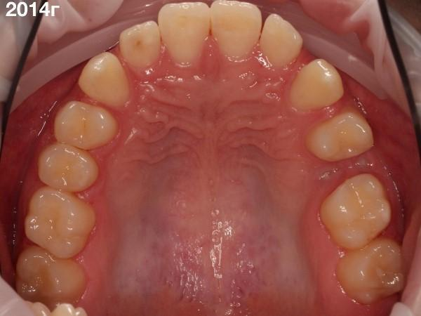 Аутотрансплантация зуба 28 на место 25