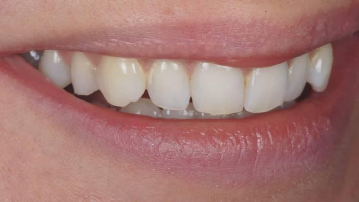 Создание бамперов для решения проблемы наползания коффердама на зуб