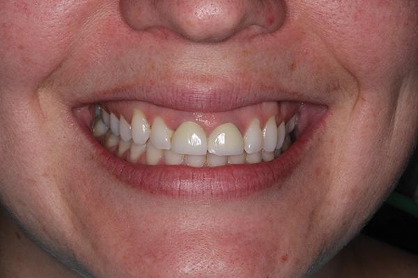Ортодонтическая экструзия при комплексной реабилитации улыбки