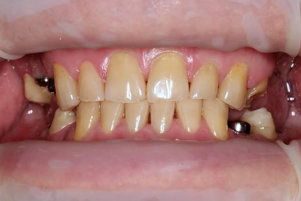 Эстетикофункциональная реабилитация пациента с частичным отсутствием зубов