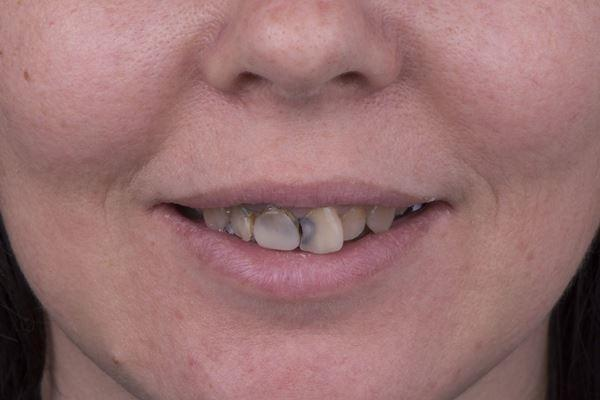 Восстановление зубов верхней челюсти безметалловыми конструкциями