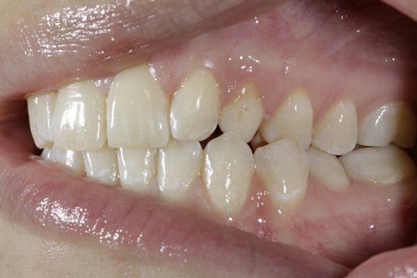 Комплексный малоинвазивный подход для улучшения функции и эстетики зубов